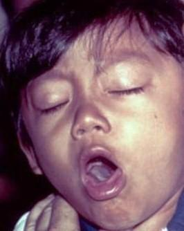 My son has a terrible cough what can I give him?