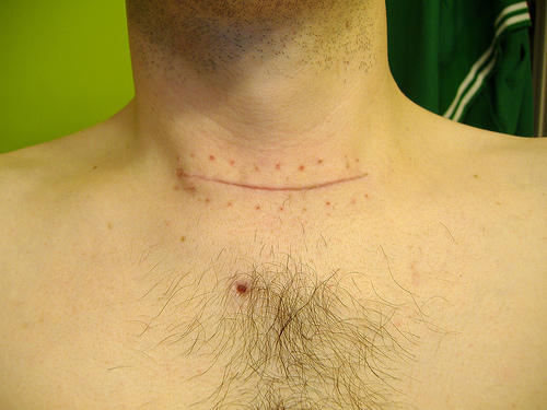 Will subclinical hypothyroidism turn into hypothyroidism? Why some doctors prefer not to treat subclinical hypothyroidism? Is the treatment bad?