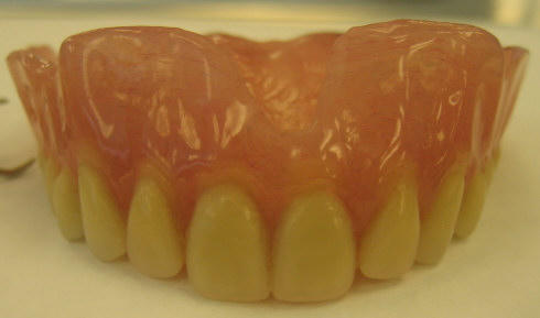 Advantage and disadvantage of acrylic as a denture base material?