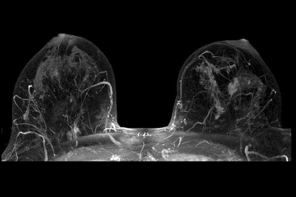 Which one is more accurat mammogram or MRI to discover breast tumor in case of breast silicon implant ?