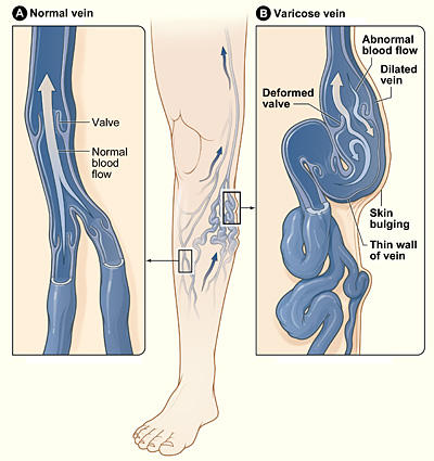 60 yrs old mom has varicose veins since 20 yrs and now ulcers for 5 yrs on one leg. No diabetes and now laser surgery failed. Please help.