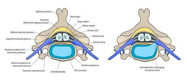 Disc bulge can cure by medicine completely without surgery?
