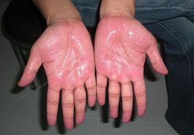 What can I do about my sweaty hands please?