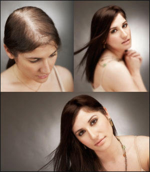How to stop hair thinning? Is using phyto effective?
