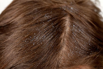 Dandruff and dry scalp?