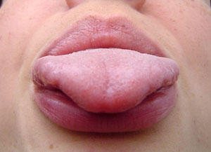 What could be the cause of painful swollen salivitory glands, swollen tongue and a headache?