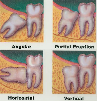 My wisdom teeth are growing in on the top row & are running against my gum making it hurt & raw. What can I do to make it easier and heal the gum?