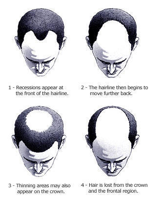 I am just 23 but my hair loss rate is very high.  I think I am gonna go bald within a year.  Is there any solution?
