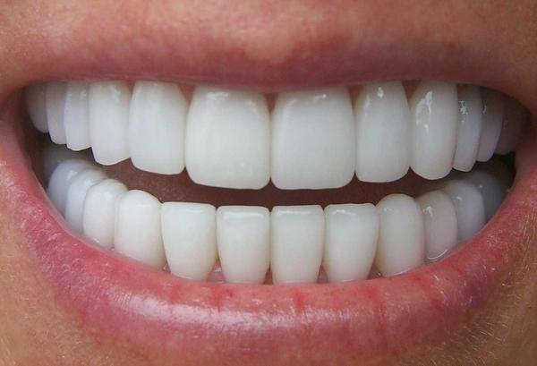 Can tooth whiteners effect your teeth in a way that they actually get yellow faster?   I had whiter teeth, but now they are getting yellow fast too?