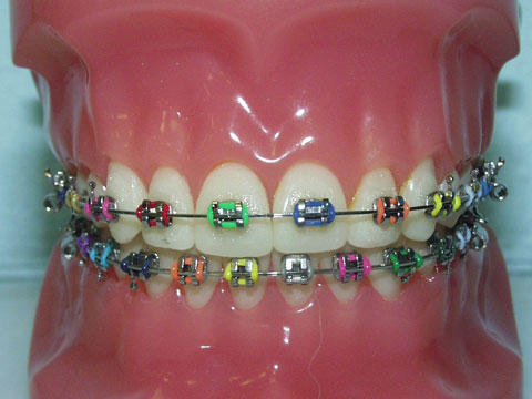 What is benefit of braces if only two teeth are slightly off?