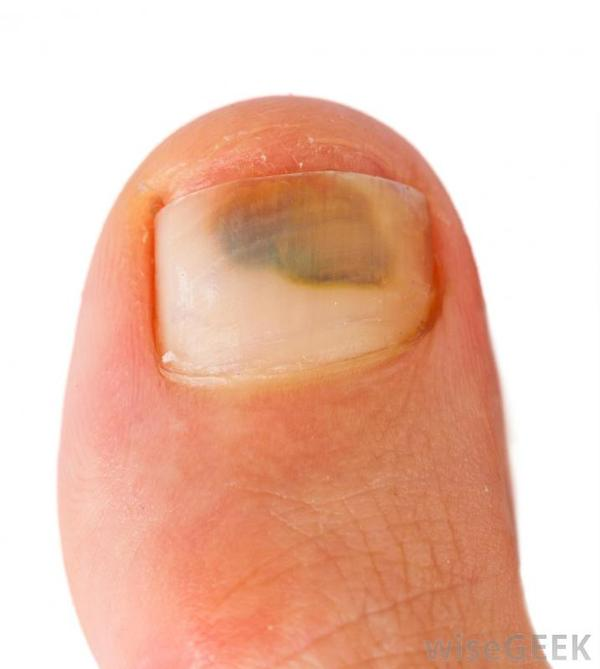 It's been 3 weeks since I've seen a doctor about toenail bruising. They said it would heal, but it has gotten darker since then. What does this mean?