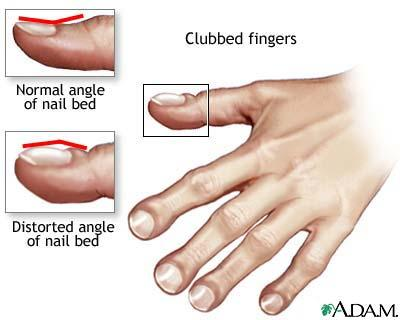 What is clubbing finger and what are effects ?
