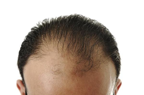 How to stop hair fall and grow hairs in bald area?  Please help.