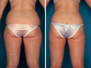I'm 20 years old and 200 lbs. I want to go for liposuction. What are the pros and cons of that procedure?