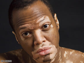 I have vitiligo patches what should my diet include?