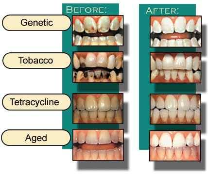 What, if anything can be done for teeth with tetracycline damage? I have damage due to tetracycline. Is there anything that can help whiten my teeth?