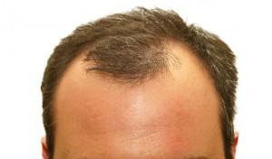 M 25 year old boy.... M suffering from hair baldness from last 3-4 year...Suggest me what I do ?