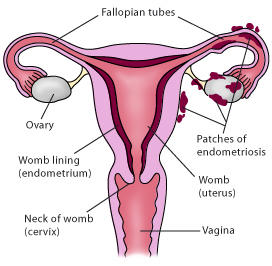 Hi, what are the chances of becoming pregnant when I have endometrioses?