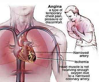 I sometimes have cardiac pain after I masturbate a lot. That includes chest pain and pain in my left arm and back. Typical symptoms of angina. Cure?