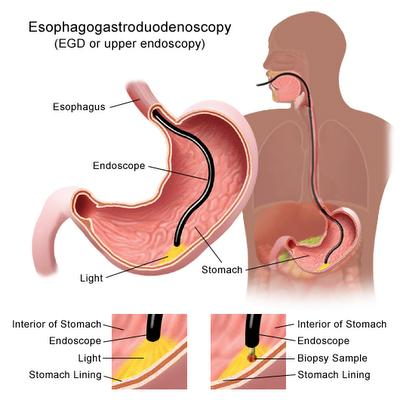 Coughing mucus and soar throat 37 hours after upper GI endoscopy. Is this normal?
