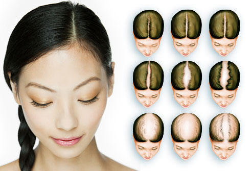 Can we stop genetical hair loss?