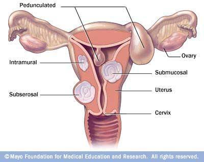 I am 31yrs old and I have fibroids in my uteris how can I have them removed?