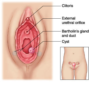 What is a bartholomew cycst and can you get this from a man sleeping with a man than a woman.