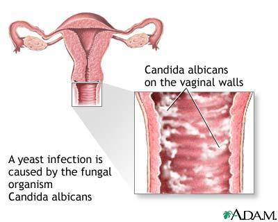 Is it possible to get a yeast infection after having a transvaginal ultrasound?
