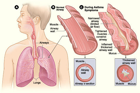 My last asthma attack happens when I was 9. Ow 21, I feel the symptoms of ait are slowing coming back. Chest pain, short breathe. What should I do?