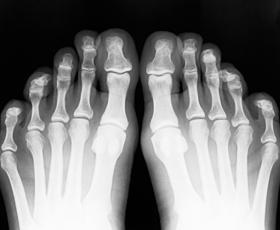 How do you diagnose a stress fracture?