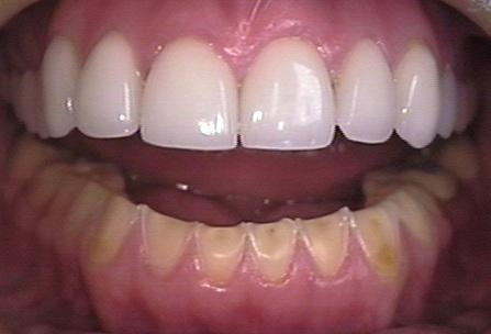 Can i reverse gingivitis caused from periodontal disease?
