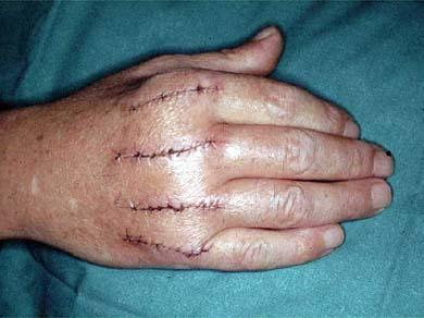 What operation do you need to fix malunion of the metacarpals?