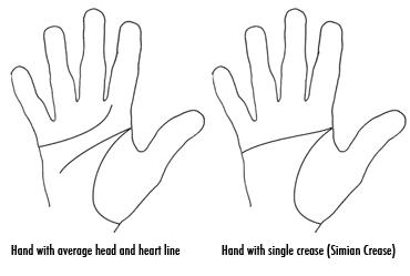 What does it mean to have simian creases on both hands?