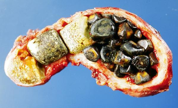 Can holistic doctors treat gall bladder disease?