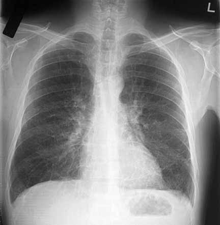 Doctor listened to my lungs and said I was not wheezing but based on my cough noise he said I had bronchitis and croup. Why didn't I get an xray?
