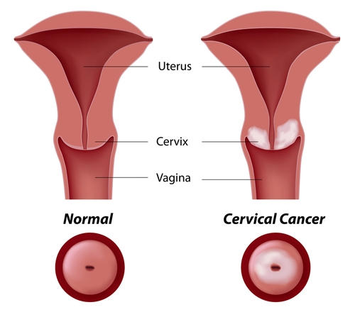 Could pain during intercourse indicate cervical cancer? If I have pain during intercourse, could this be an indication of cervical cancer?