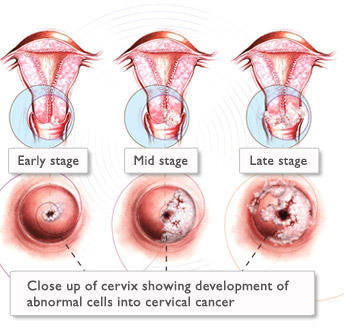 Is cervical cancer considered as a std?