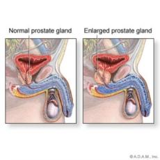 What would pain associated with prostate problems feel like. I cannot tell life its the same pain associated with hemorrhoids i never had either?