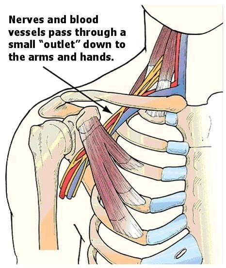 Would breaking the nerve across the chest lead to losing muscle mass in the upper arms? Would the same be true for the nerves and muscles down front?