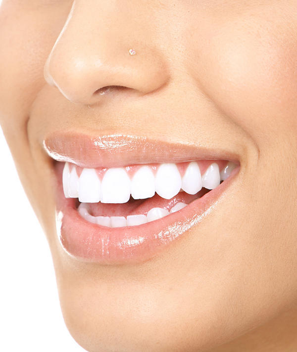 I want braces but was looking at dental implants or veneers. What do you think is best?