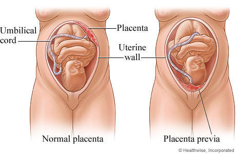Why is the bleeding painless from placenta previa?