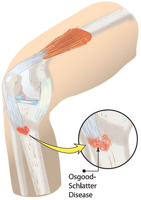 What is helpful for  osgood schlatter's disease?