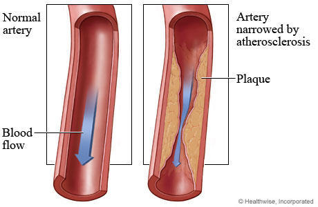 What causes atherosclerosis?