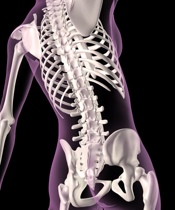 What is myelomalacia of spinal cord c4-t1?