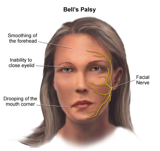 During a very stressful period in my life, i got bell's palsy. Could the stress be the cause of it?