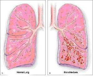 I ve bronciectasis in left lower lobe, need antibitoics many times p/yr, 