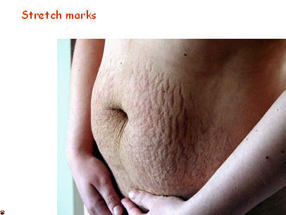 Why do girls have stretch marks on their sides?