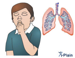 My son had tuberculosis when he was 9years old. His coughing however sounds really bad. Is it possible for TB to have a relapse?