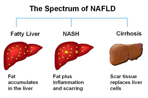 What is cirrhosis w/nash?