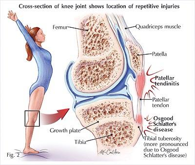 Icy Hot For Tendonitis - Doctor answers on HealthTap